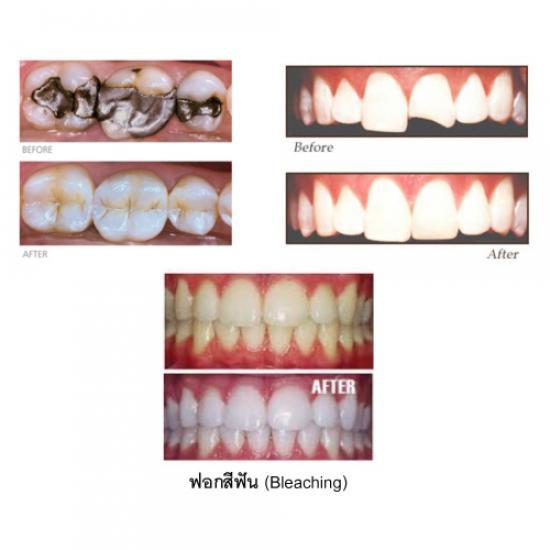 โรงพยาบาลทันตกรรม เอเซีย ฟอร์จูน - ฟอกสีฟัน เชียงใหม่